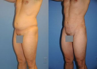 Liposuction before 636186