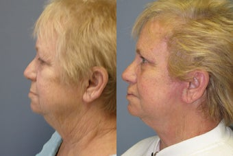 Lite Lift™, liposuction of the neck, brow lift, eyelid lift before 523711