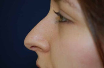 Non-Surgical Rhinoplasty before 513469