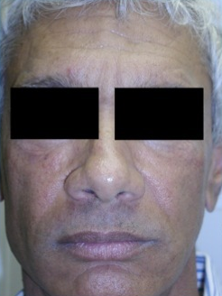 Silicone Microdroplet Therapy for Facial Atrophy after 334062