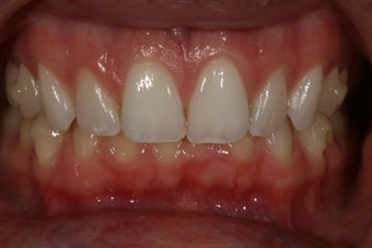 Invisalign after 415016