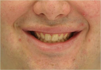 Lip Surgery, Lip Reduction after 458986