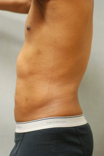 SmartLipo™  Restoration of a Male's Abs  after 450440
