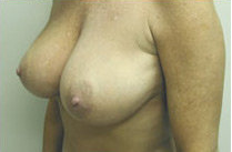 Breast Reduction 141482