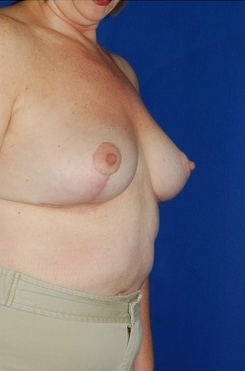 Heavy breast treatment, implant removal and breast lift 158172