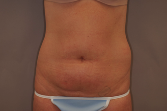 Tummy Liposuction before 229694