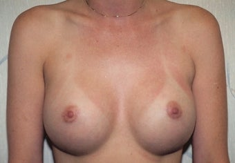 Breast Augmentation after 266783
