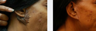 Keloid Repair before 346219