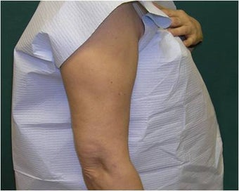 Liposuction of the arms after 589893
