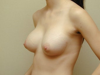 Subglandular Breast Augmentation 469016