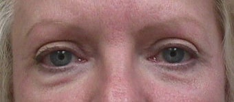 Eyelid surgery after 140096