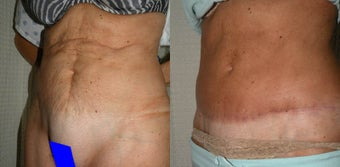 Tummy Tuck Revision after 400493