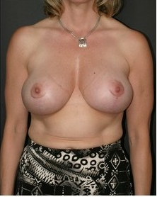 Breast Lift after 99893