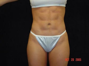 Liposuction Abdomen, Waist, Flanks, Outer Thighs with 6 Pack Abdominal Etching