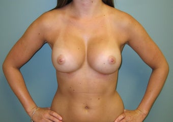 Breast Augmentation, 375 cc Silicone, Moderate Plus Profile after 454543