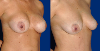 Breast Implant Removal after 495858