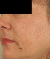 Melasma Treatment  after 120084