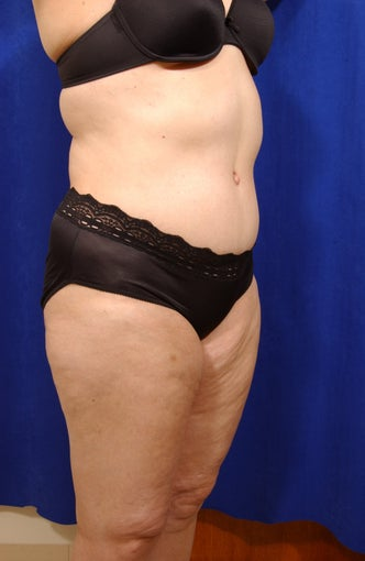Abdominoplasty with liposculpture of abs, flanks, and waist after 82415
