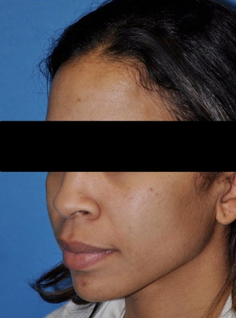 African American Rhinoplasty before 364919