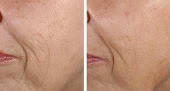Fractional Skin Resurfacing Before and After Fractional Skin Resurfacing before 69341