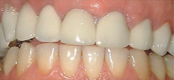 crown lengthening on temporary crowns after 607255
