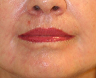 Lip lift, corner of lip lift, and laser treatment of wrinkles around lips after 299916