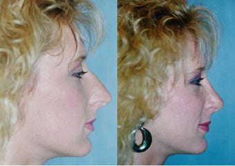 Rhinoplasty (Nasal Spine Reduction)