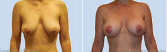 Breast Lift before 214367