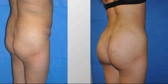 Fat transfer buttock augmentation before 163651