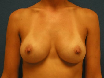 Breast Augmentation after 475887