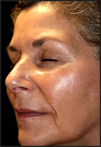 Fraxel - Melasma before 652345