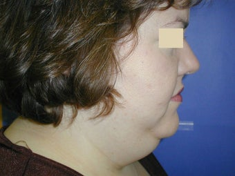 Neck Liposuction before 93325