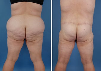 Bilateral Lower Body Lift and Liposuction 303678