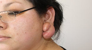 Ear lobe Keloid  before 494478