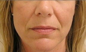 Juvederm before 314274