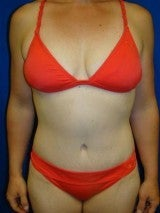 Breast Reduction, Tummy Tuck (Abdominoplasty), Mommy Makeover after 404137