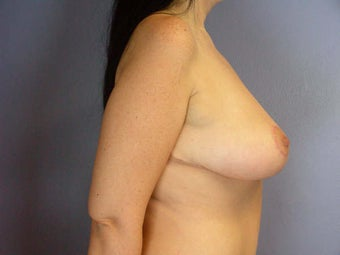 Breast Lift after 280140