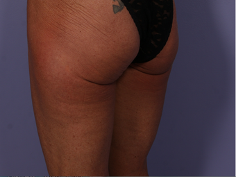 CoolSculpting to Banana Roll/ Upper, Posterior thigh after 563835