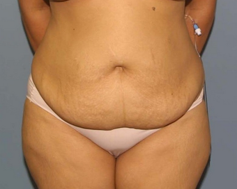 tummy tuck before 527241