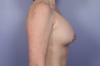 Breast Lift / Breast Augmentation  after 291068
