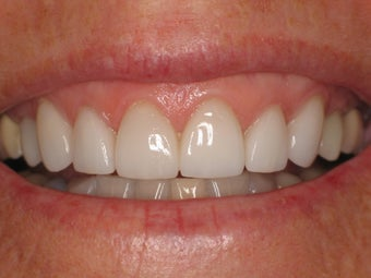 Smile Makeover after 364699