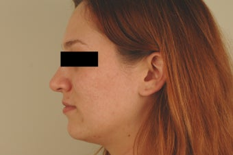 Laser Acne Treatment after 82945