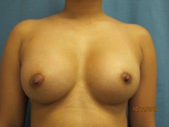 Breast Augmentation after 295155