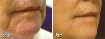 Laser skin resurfacing to get rid of facial lines and wrinkles before 6429