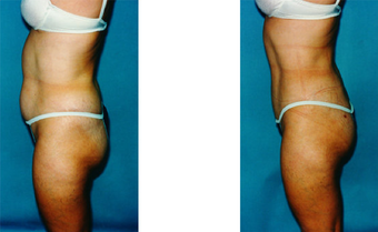 Liposuction before 264310