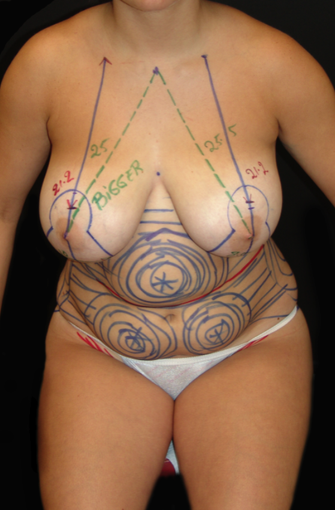 Breast Lift and Tummy Liposuction before 230740