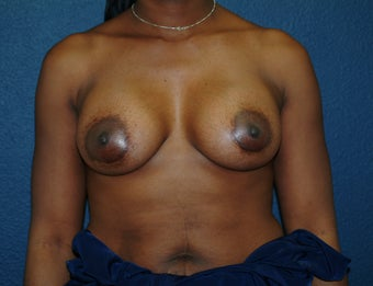 Breast Augmentation after 575278