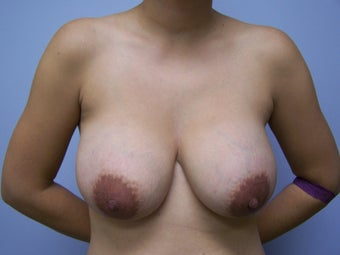 Breast Implant Removal before 532597