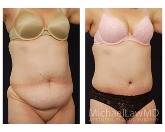 Abdominoplasty - Tummy Tuck after 396103