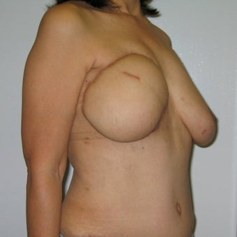 Nipple Reconstruction 523521